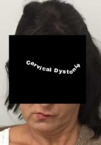 What Is Cervical Dystonia?
